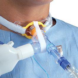 tracheostomy for sleep apnea