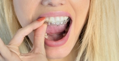 Sleepright Dental Guard Reviews- Is This The Best Mouthguard for TMJ?
